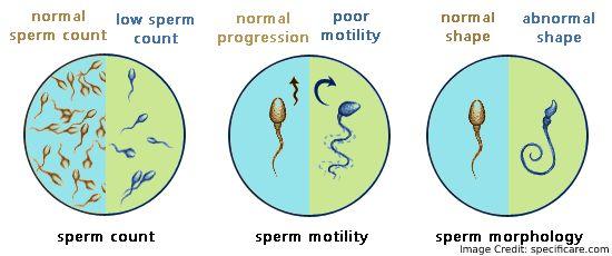 Sperm Chart