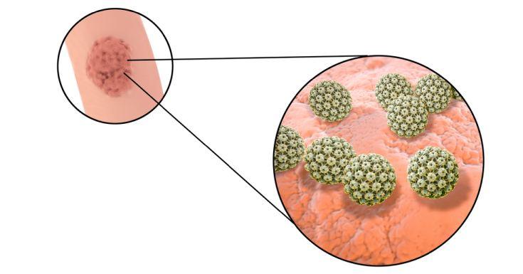 Human Papillomavirus Spread Though The Body